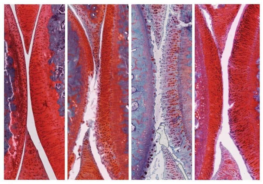 Drug combo reverses arthritis in rats