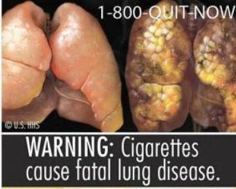 smoking cancer