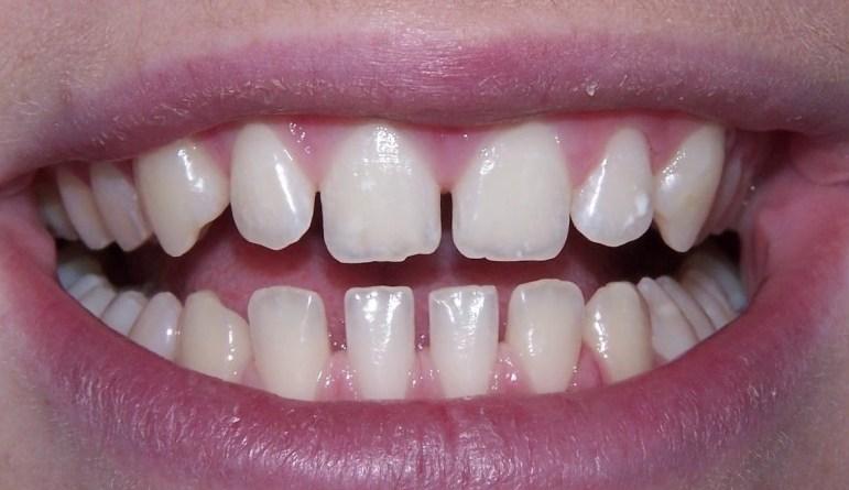 दाँतको बीचमा खाली ठाउँ