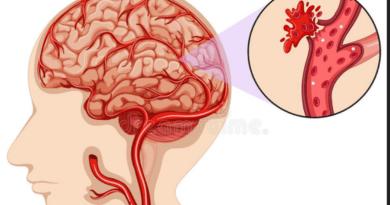मस्तिष्क रक्तस्राव