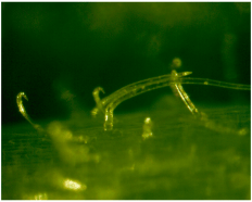 Two types of trichomes on highly cyanogenic lima bean.  Photo: Adrienne Godschalx