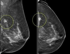 Pesquisadores identificam como o câncer de mama mais comum se torna resistente ao tratamento