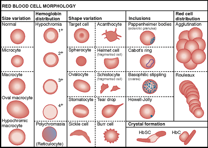 RBC Morphology Abnormal Morphologies and inclusions of RBC