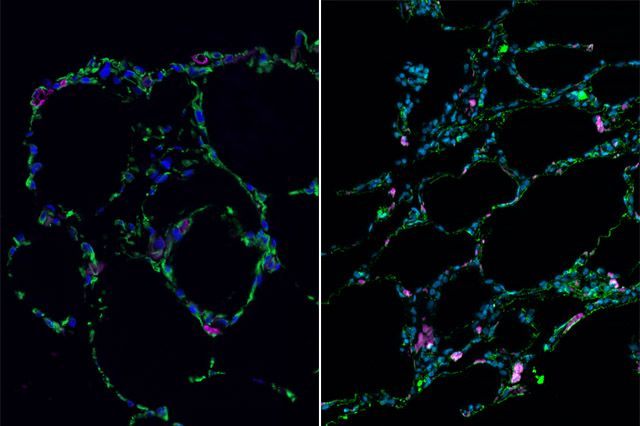 Credits: UCLA Broad Stem Cell Research Center 3-D bioengineered lung-like tissue (left) resembles adult human lung (right).
