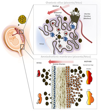 two modes of Zika virus fetal infection