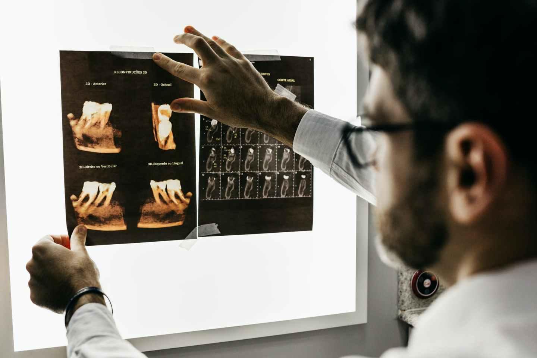 man looking at teeth x rays