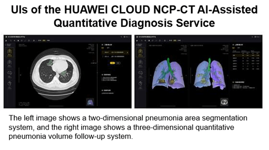 Huawei Cloud, AI-assisted, diagnosis for Covid-19, CT