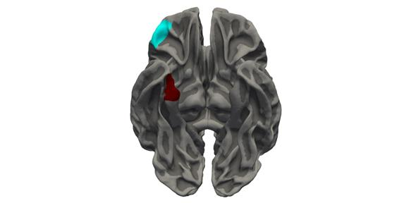 The orbitofrontal cortex (blue) and medial temporal cortex (red) were more similar in terms of thickness in youths with Conduct Disorder than in typically-developing youths, suggesting that the normal pattern of brain development is disrupted. Credit: Nicola Toschi