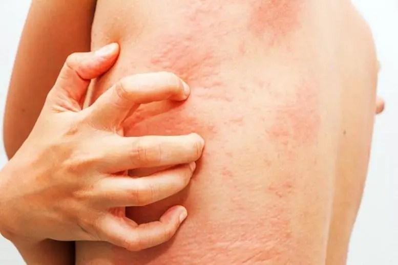 Chronically Itchy Skin