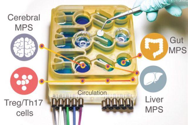MIT gut-brain axis device