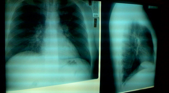 MRSA-pneumonia