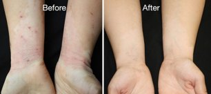 Image result for rheumatoid arthritis before after