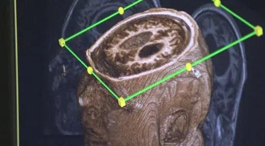 fmri-scan-vegetative-state-patient