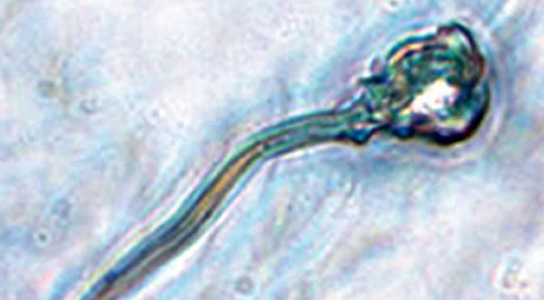 sperm-microscope-image