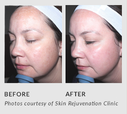 Photos courtesy of Skin Rejuvenation Clinic