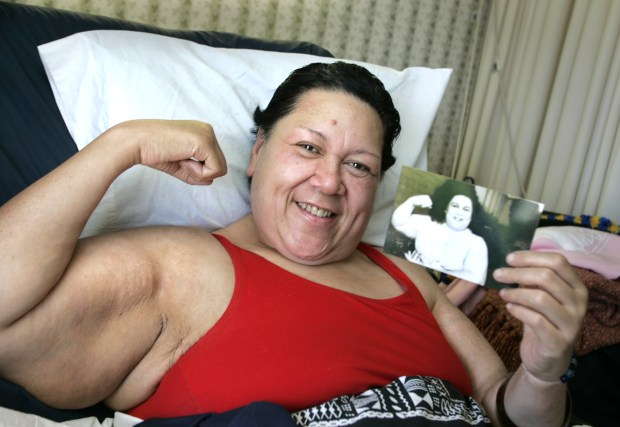 "In a 2008 photo, Emily Dole, aka ""Mount Fiji,"" of 1980's GLOW pro wrestling girls fame, narrowly missed making two U.S. Olympics teams and will be cheering on the team from her nursing home bed. She is holding a photo of herself from her pro wrestling days. The wrestler-actor grew up in Cypress. She was hospitalized since 2006 for a weight-related problems. Dole was pictured at the Fountain Care Center in Orange. (File photo by H. Lorren Au Jr., Orange County Register/SCNG)"