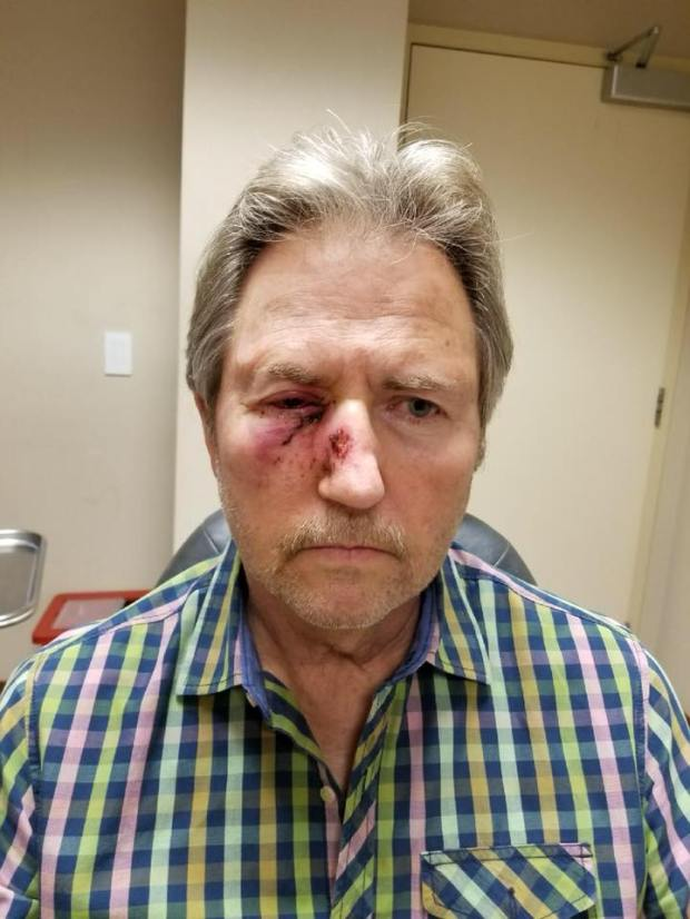 Michael Fejes may permanently lose vision in his right eye following a paintball gun attack by unknown assailants Sunday evening near Hickory Park in Torrance. Courtesy photo.