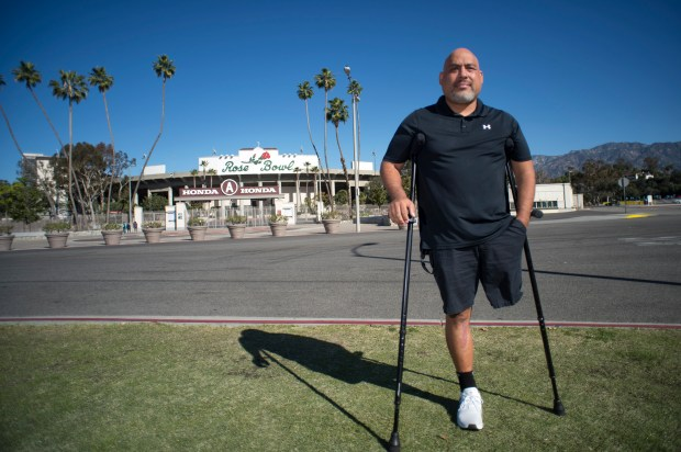 Former St. Francis High School football coach and Alhambra resident Larry Duenas lost his left leg as a result of cancer. The single father of three is looking to raise $90,000 to go overseas for a prosthetic procedure that is not yet approved by the FDA. (Hans Gutknecht, Los Angeles Daily News/SCNG)
