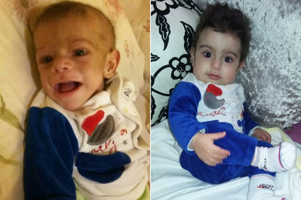 Hussein El Kerdi before, left, and after his successful treatment for ADA-SCID, also known as bubble baby disease, at UCLA. (Photos courtesy of the El Kerdi family)