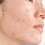 heal acne