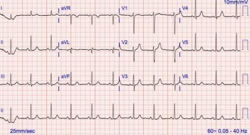 Repeat 12 lead EKG showing normal sinus rhythm. | Download ...