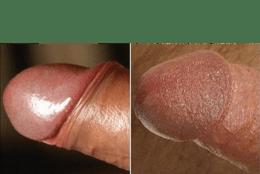 Circumcision Damage