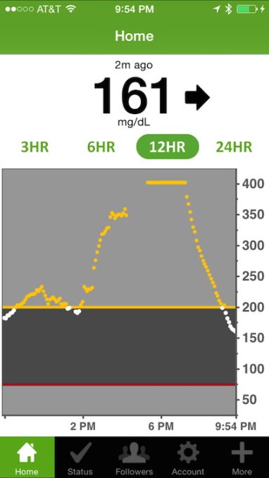 Dexcom Share iOS screen with high blood sugar