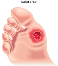 Signs and Symptoms of Diabetic Foot Ulcers