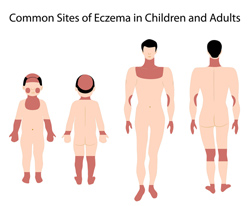 """Eczema — """"The itch that rashes"""""""