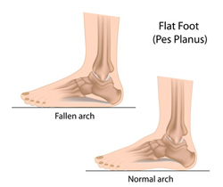 Figuring out flat feet