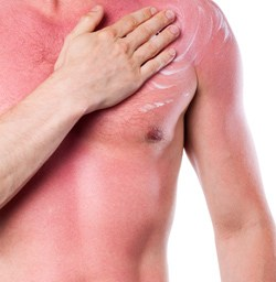 Lathering on the aloe vera? Six ways to treat sunburn
