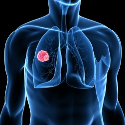 Medicare coverage of lung cancer screening explained
