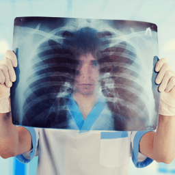 3 chronic conditions that can damage your lungs