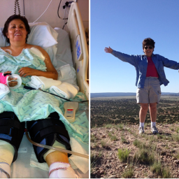 Celebrating life after traumatic injury