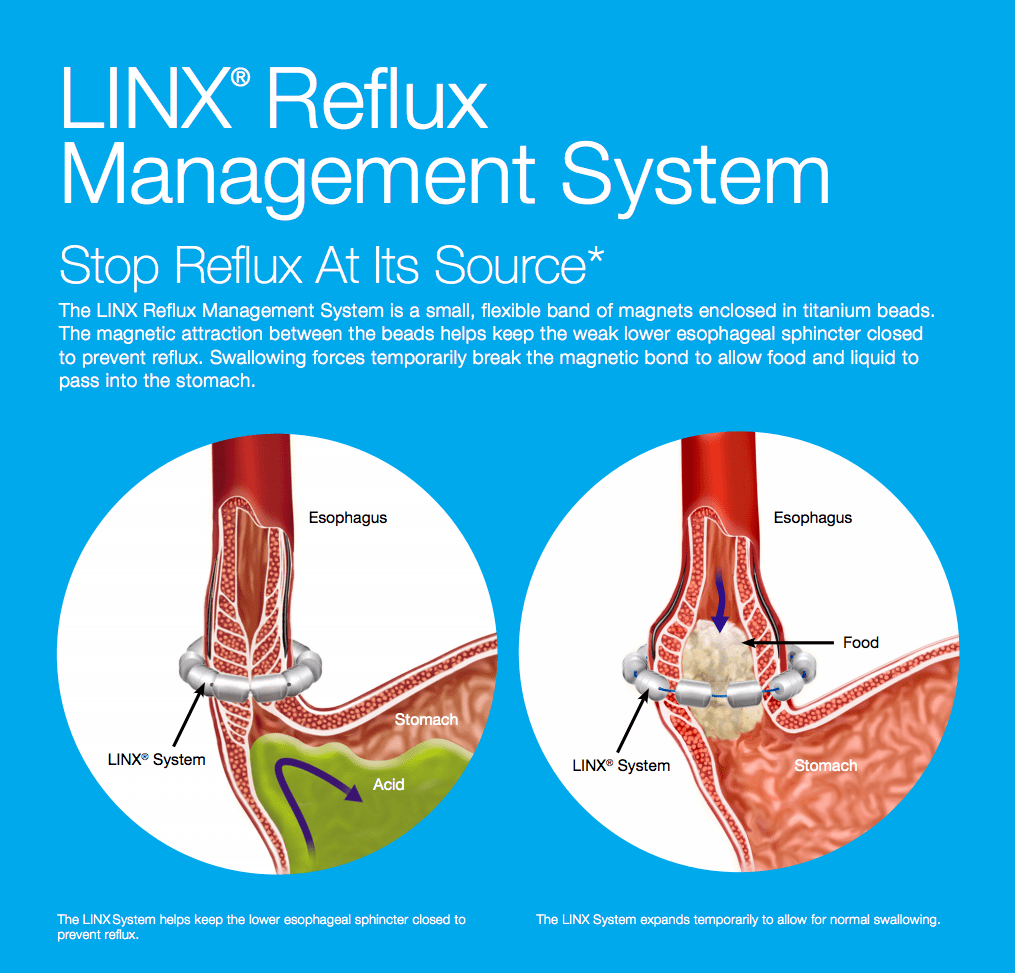 linx®: a game-changing treatment for acid reflux and gerd | scrubbing in