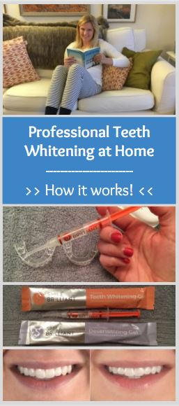 Professional Teeth Whitening at Home - How it Works - Plus a Giveaway and Coupon Code from Smile Brilliant - SC's Scoop