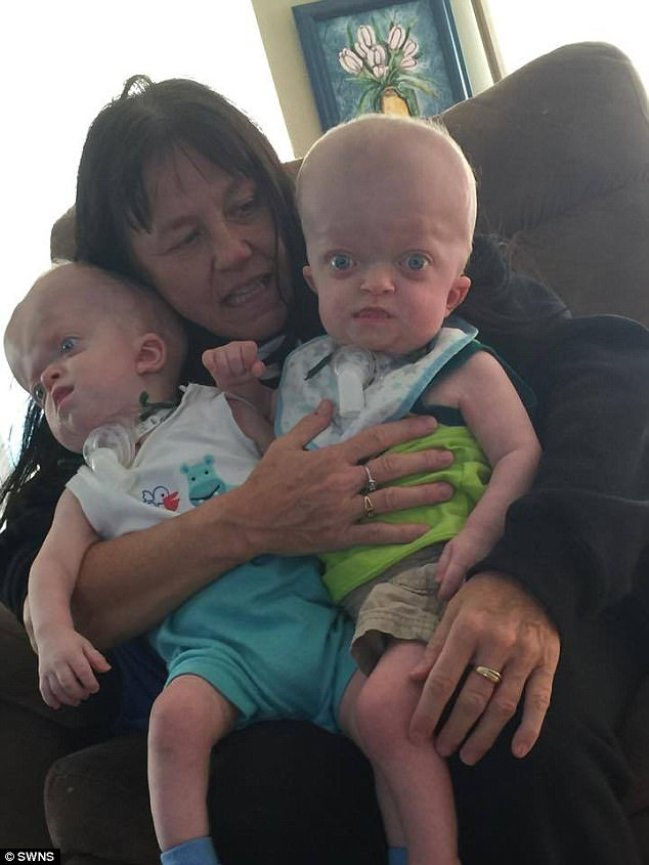 Selfless Grandmother Adopts Baby Twins Born With Rare Genetic Deformity
