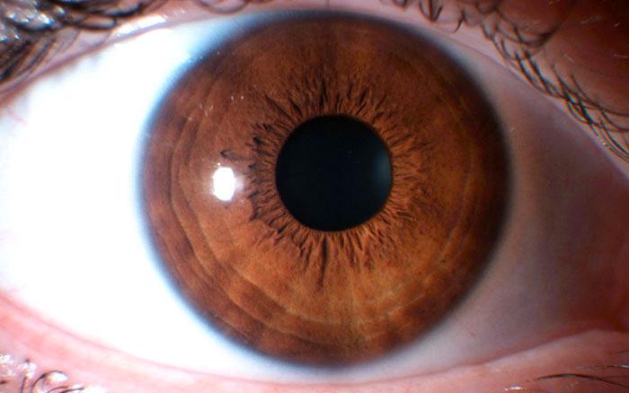 costituzione ematogena iridologia