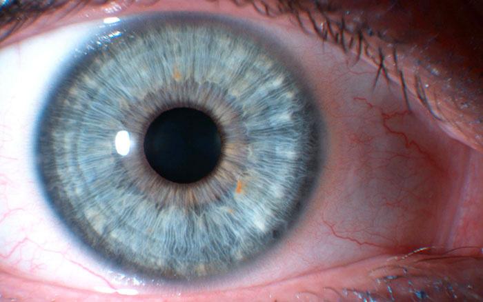 costituzione linfatica iridologia