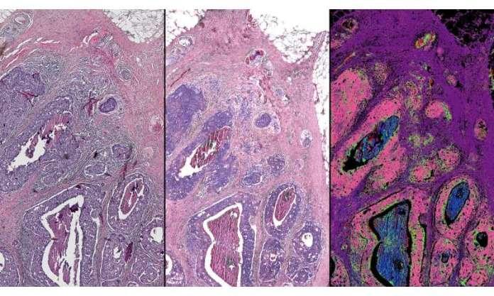 Microscópio híbrido pode levar biópsia digital à clínica