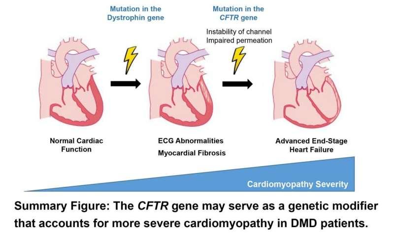 Genetic mutation could worsen heart function in Duchenne muscular dystrophy patients