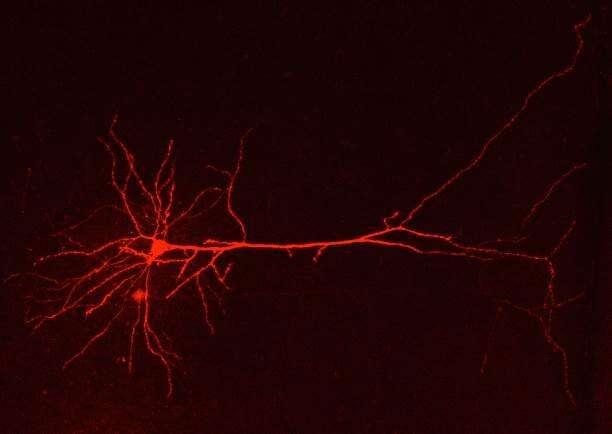 Genetic malfunction of brain astrocytes triggers migraine