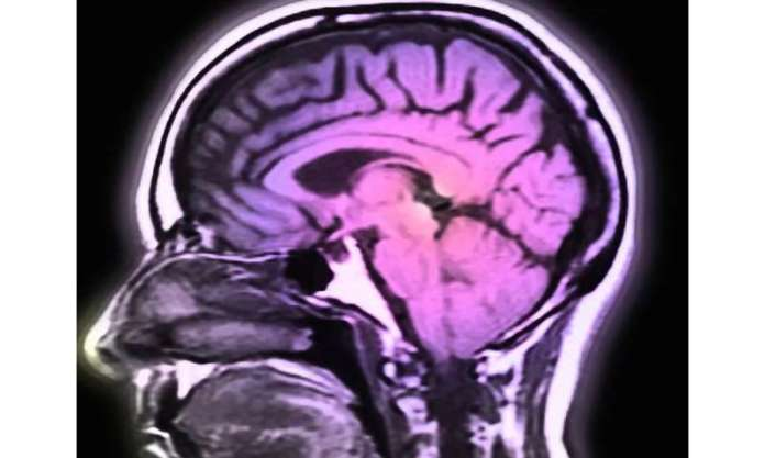 COVID-19 can harm the brain in some cases