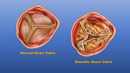 Race and Ethnicity May Impact Prevalence and Treatment of Heart Valve Dysfunction