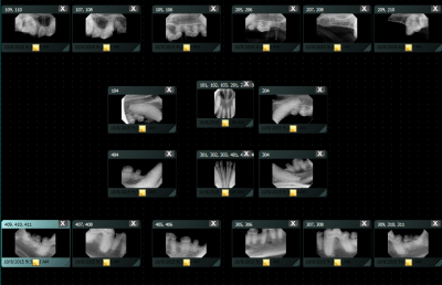 Full mouth X-rays