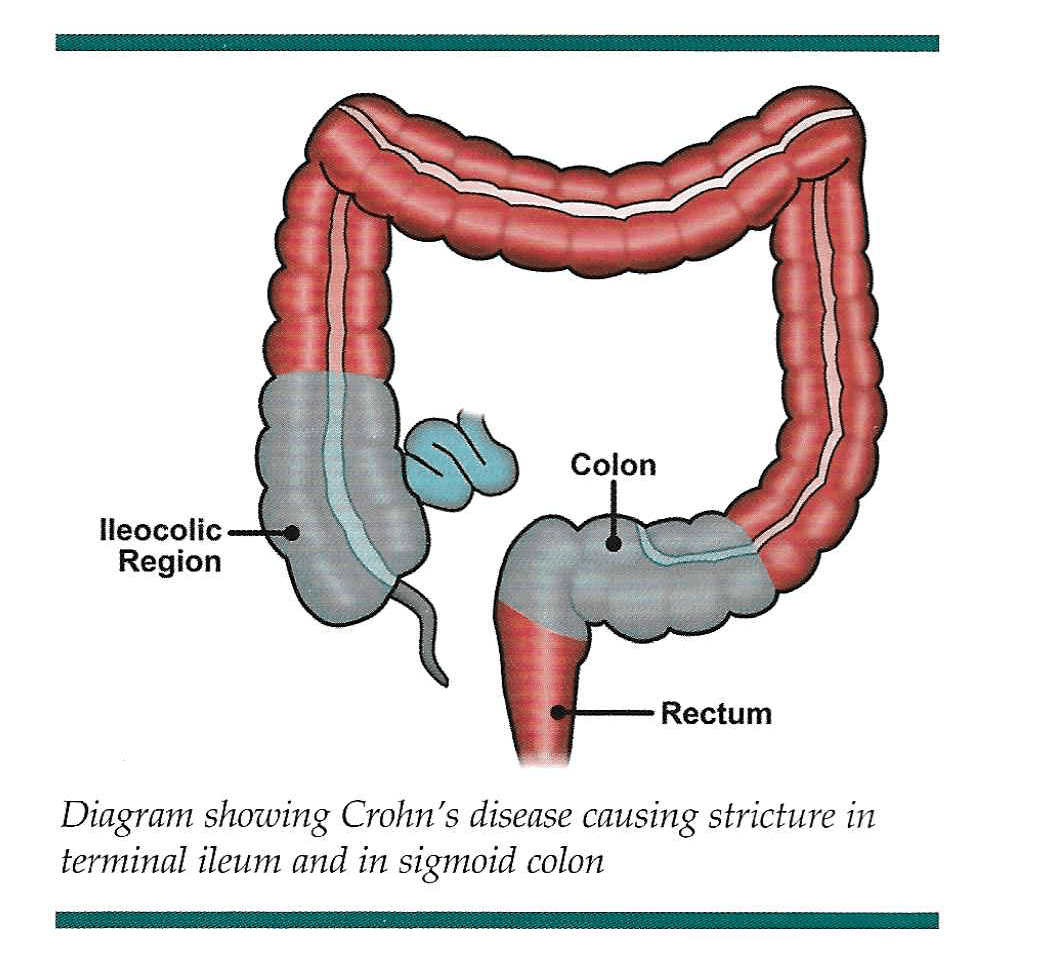 Crohn S Disease Graphic