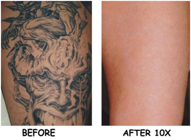 Laser Tattoo Removal | Laser Tattoo Removal Cost