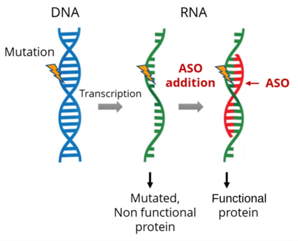 This diagram shows how ASO splices in the other half of this RNA strand to create a fully functional protein. (Courtesy of SpliSense)