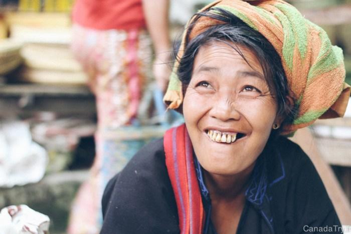 birmanie dents