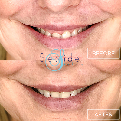 Botox Lip Flip Before & After